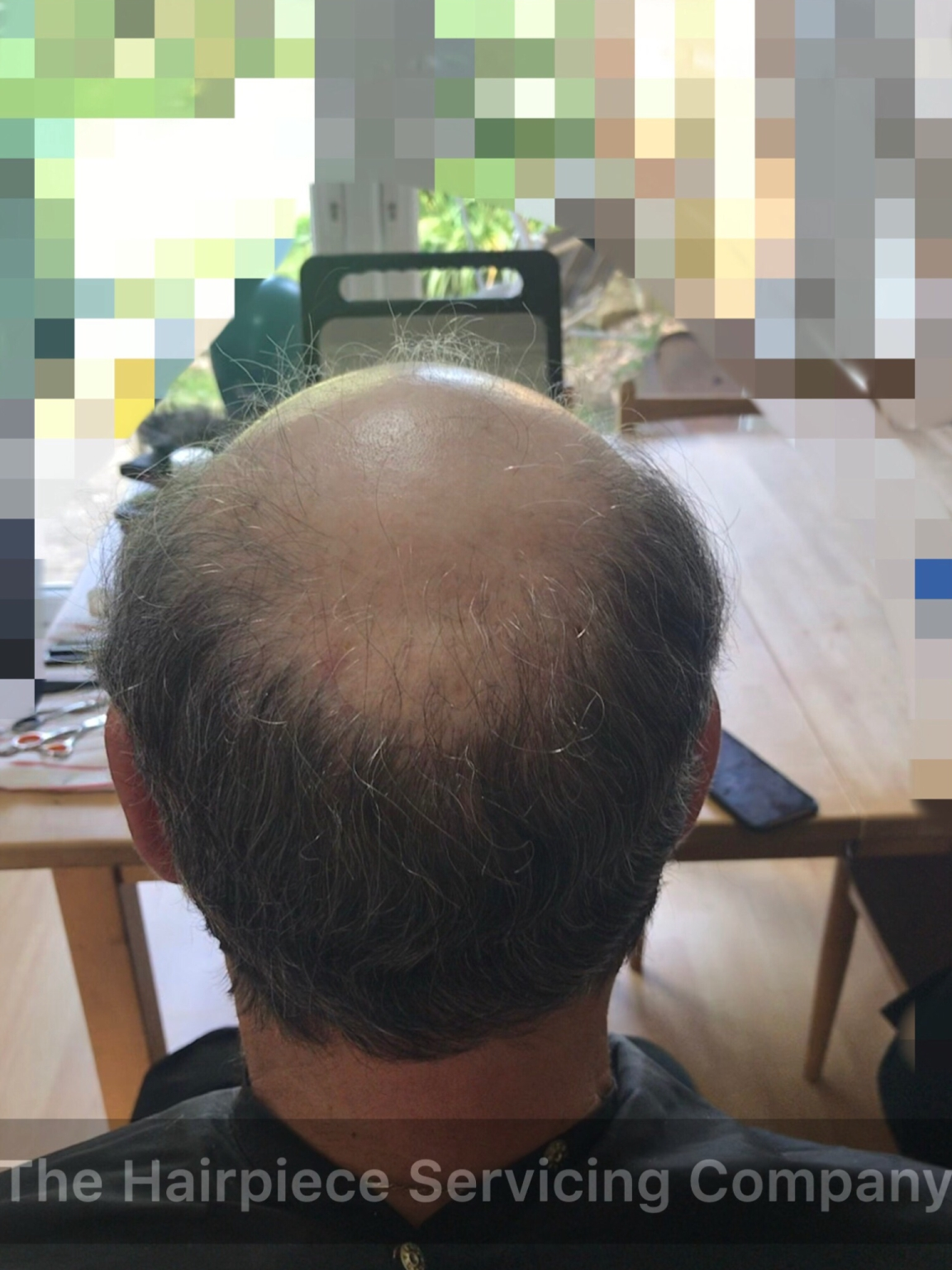 Hairpieces for balding